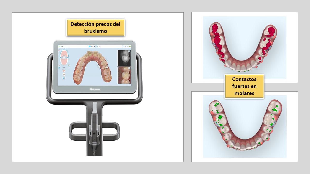 Invisalign-escaner-eficiencia